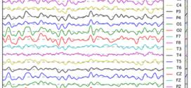 EEG predictors of covert vigilant attention. Advances in Engineering