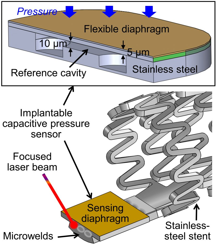 A stainless-steel-based implantable pressure sensor chip and its integration by microwelding-Advances in Engineering